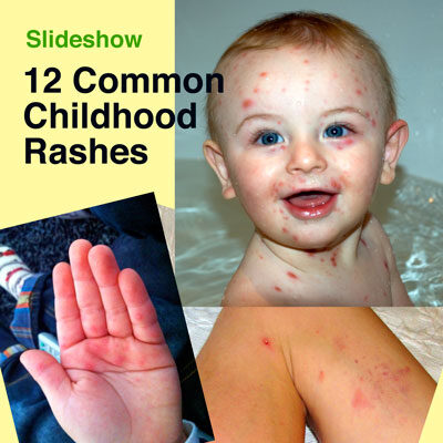 12 Common Childhood Rashes | The Survival Doctor